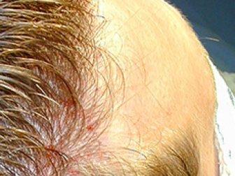 Kadınlarda Saç Dökülmesi, Genetik Saç Dökülmesi DHT Hormonu