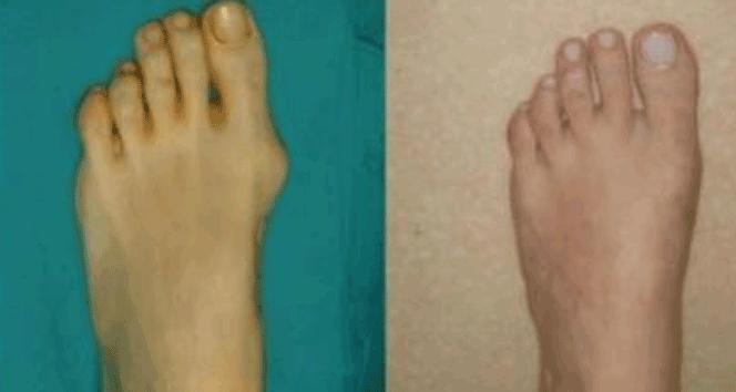 Ayaklarda ağrıyla ortaya çıkan çarpıklığa dikkat