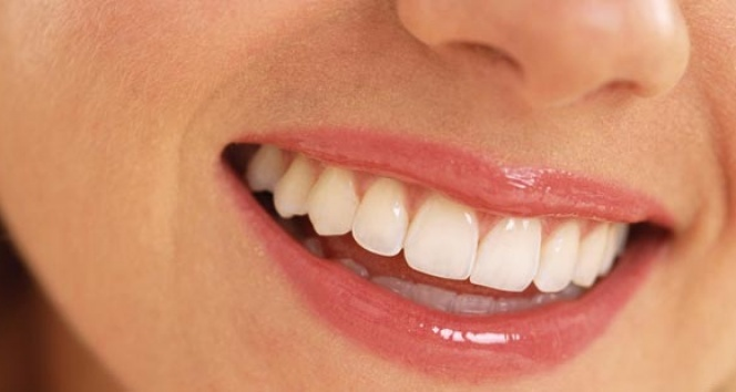 Gülerken diş etiniz görünüyorsa dikkat