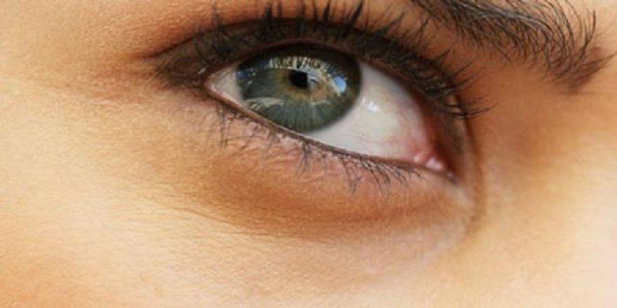 'Göz Kızarıklığı'na dikkat!