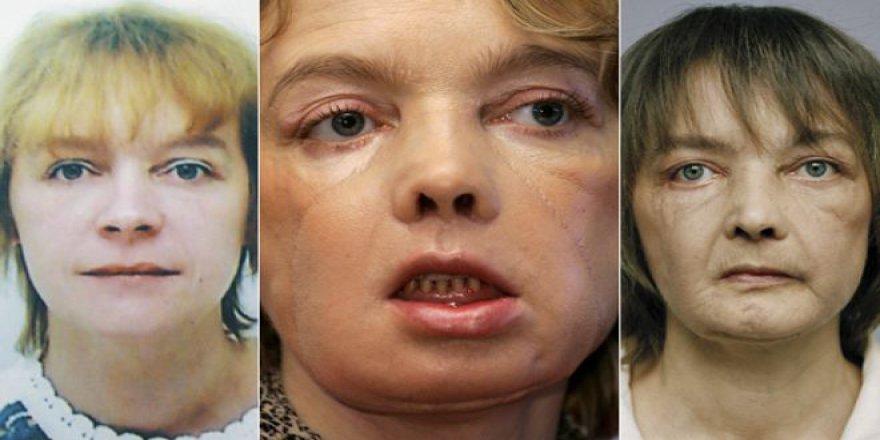 Dünyanın İlk Yüz Nakli Yapılan İnsanı Isabelle Dinoire Hayatını Kaybetti!