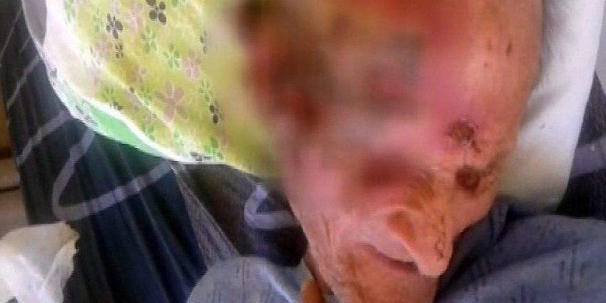 Antalya'da bir huzurevinde gündeme gelen yaşlı adam öldü