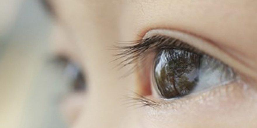Kaybedilen Göze Son Tedavi! Göz Protezi