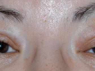 Göz Kapağı Düşüklüğü Baş Ağrısının Sebebi Olabilir, Göz Kapağı Düşüklüğü Tedavisi