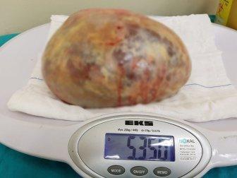 Samsun'da Bir Hastadan Tam 5 Kilo 350 Gram Kist Çıkarıldı