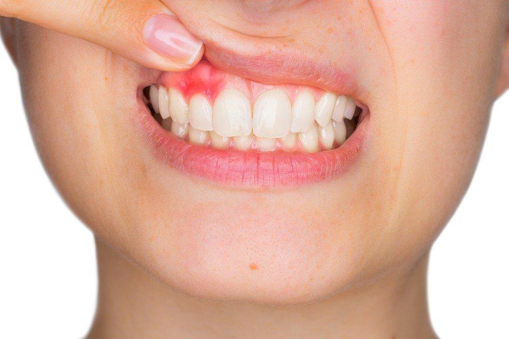 Diş Etindeki Renklenmeler neden olur