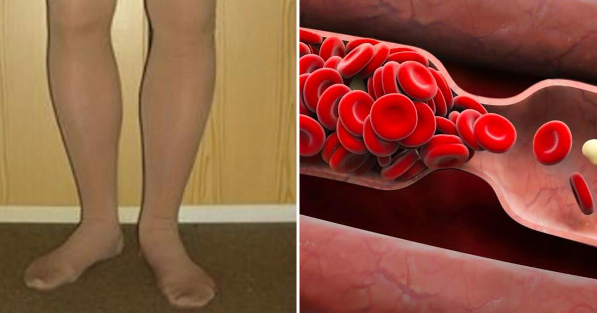 Vücudunuz Sizi Önceden Uyarıyor – İşte Kan Pıhtılaşmasının 8 Belirtisi