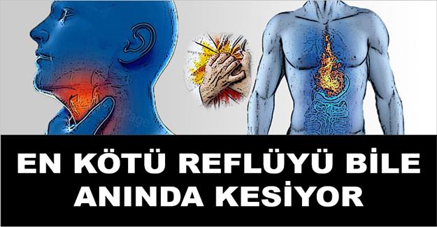 Reflü hastalığına doğal tedavi