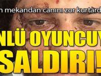 Kadıköy'de oyuncuya şok saldırı. Canını zor kurtardı