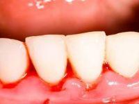 Dişlerinizi Fırçalarken Eğer böyle oluyorsa bir çözümü var! Denemelisiniz