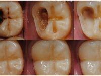 Diş çürümesinin önüne geçecek doğal yöntemler! Diş Çürümesini Durdurmanın en kolay yolu