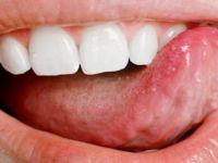 Dilin Altı böyleyse eğer kanser belirtisi! Aylar önceden kendini belli ediyormuş