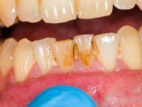 Diş taşlarınızı evde hazırlayacağınız doğal karışımlarla yok etmek artık mümkün.
