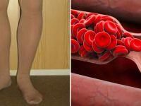 Vücudunuz Sizi Önceden Uyarıyor – işte Kan Pıhtılaşmasının 8 Belirtisi