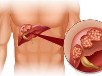 Bu Doğal Reçeteyle Yağlanmış İltihaplı Karaciğere Elveda…Kimya mühendisi açıkladı