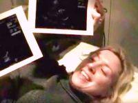 Ultrasonda Bebeğinin Görüntülerini Kaydetmeye Başladı – Doktor Ona Bakın Neden Durmasını Söyledi