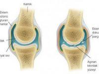 Osteoartrit (Kireçlenme), Yaşam Kalitenizi Düşürmesin!